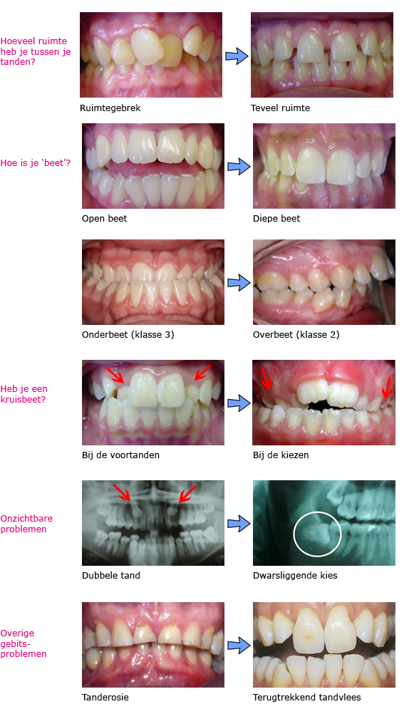 Orthodontische problemen copy