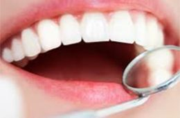kosten beugel TOP Orthodontie